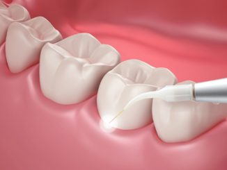 5 Reasons to Consider Laser Periodontal Treatment