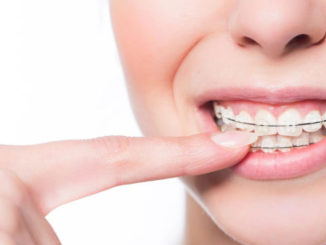 What to Do to Take Braces Off as Soon as Possible